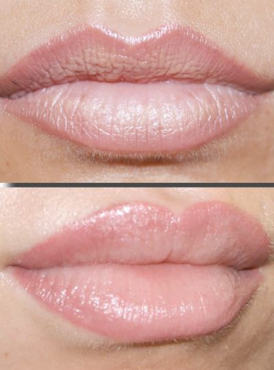 candy lips correction levres