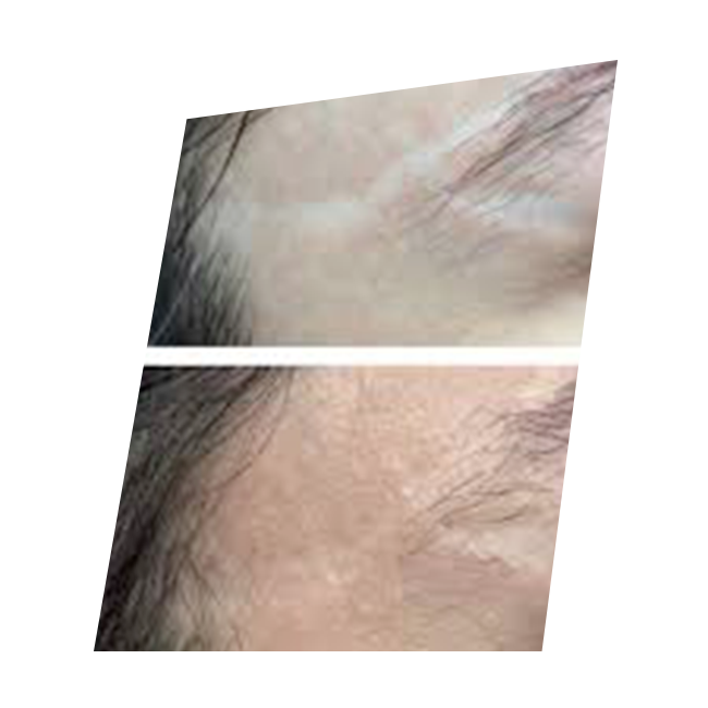 new skin needling attenuer cicatrices