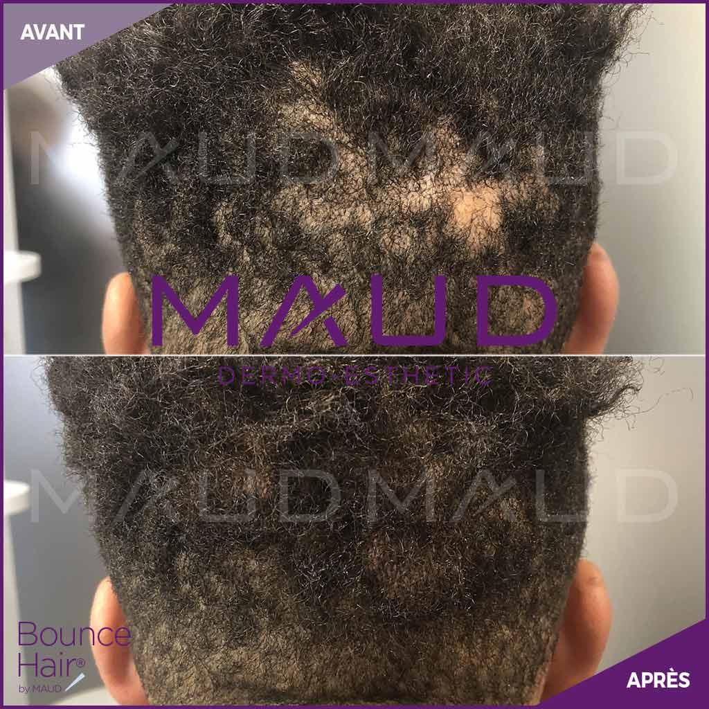 life-repair-alopecie-bounce-hair-maud-dermo-esthetic-2