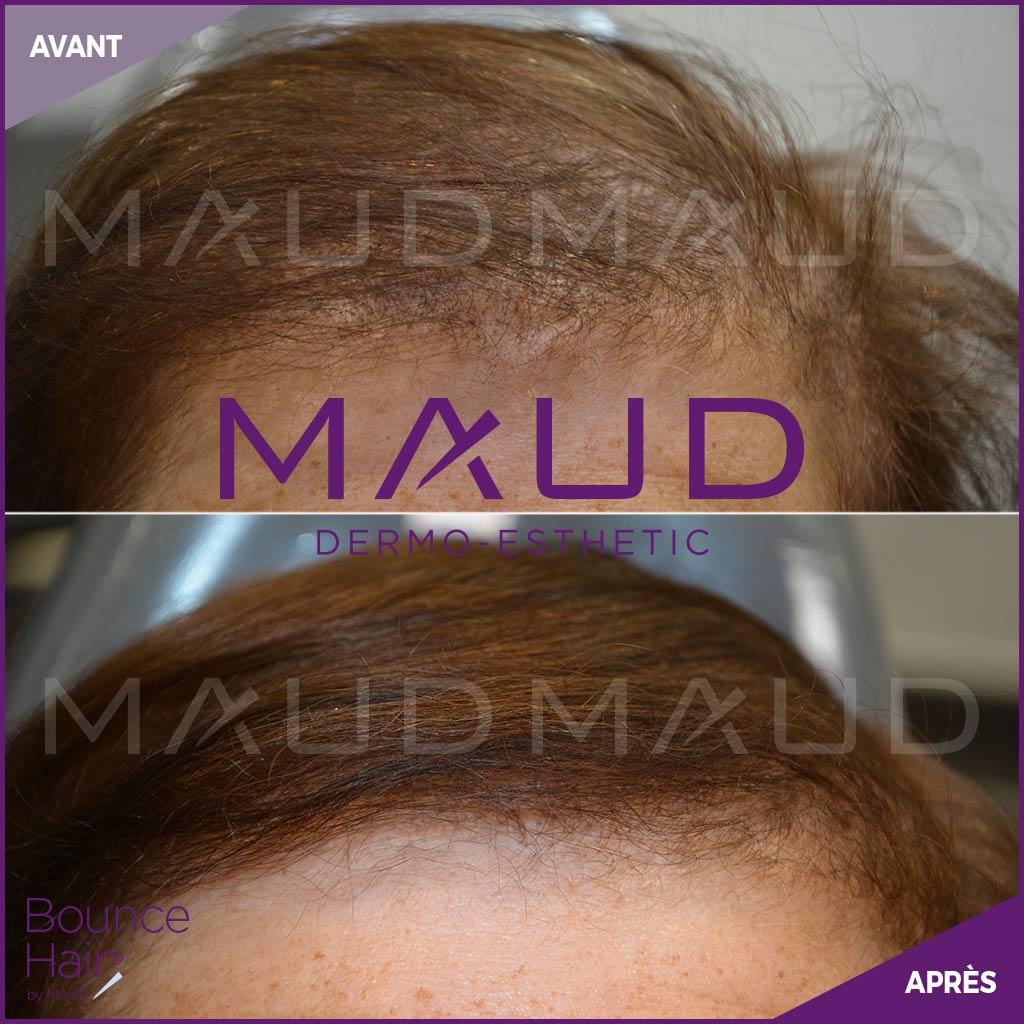 life-repair-alopecie-bounce-hair-maud-dermo-esthetic