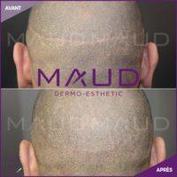 life-repair-alopecie-scar-hair-maud-dermo-esthetic