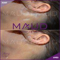 life-repair-cicatrice-lifting-scar-maud-dermo-esthetic-3