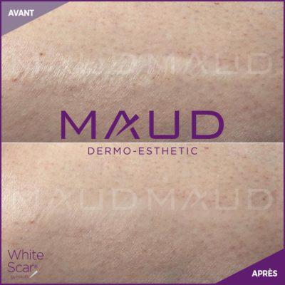 life-repair-cicatrice-white-scar-maud-dermo-esthetic-2