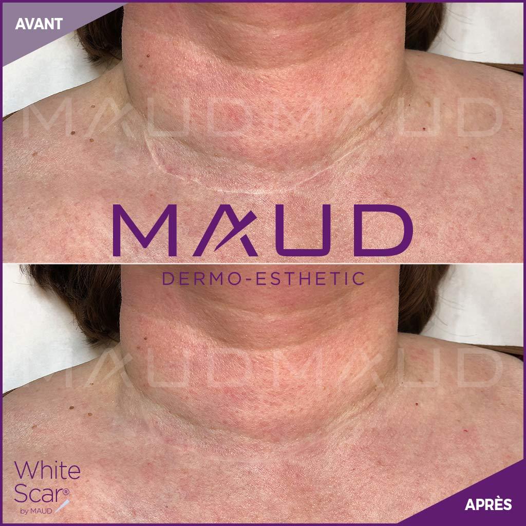 life-repair-cicatrice-white-scar-maud-dermo-esthetic-3
