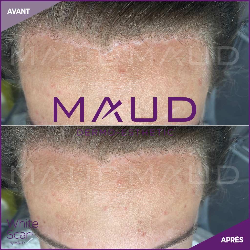 life-repair-cicatrice-white-scar-maud-dermo-esthetic-4