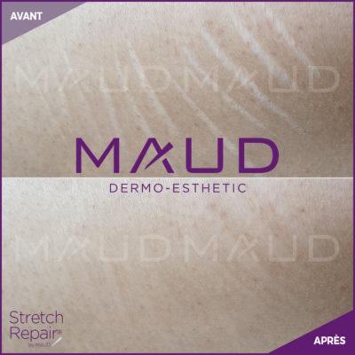 life-repair-vergeture-stretch-repair-maud-dermo-esthetic-2