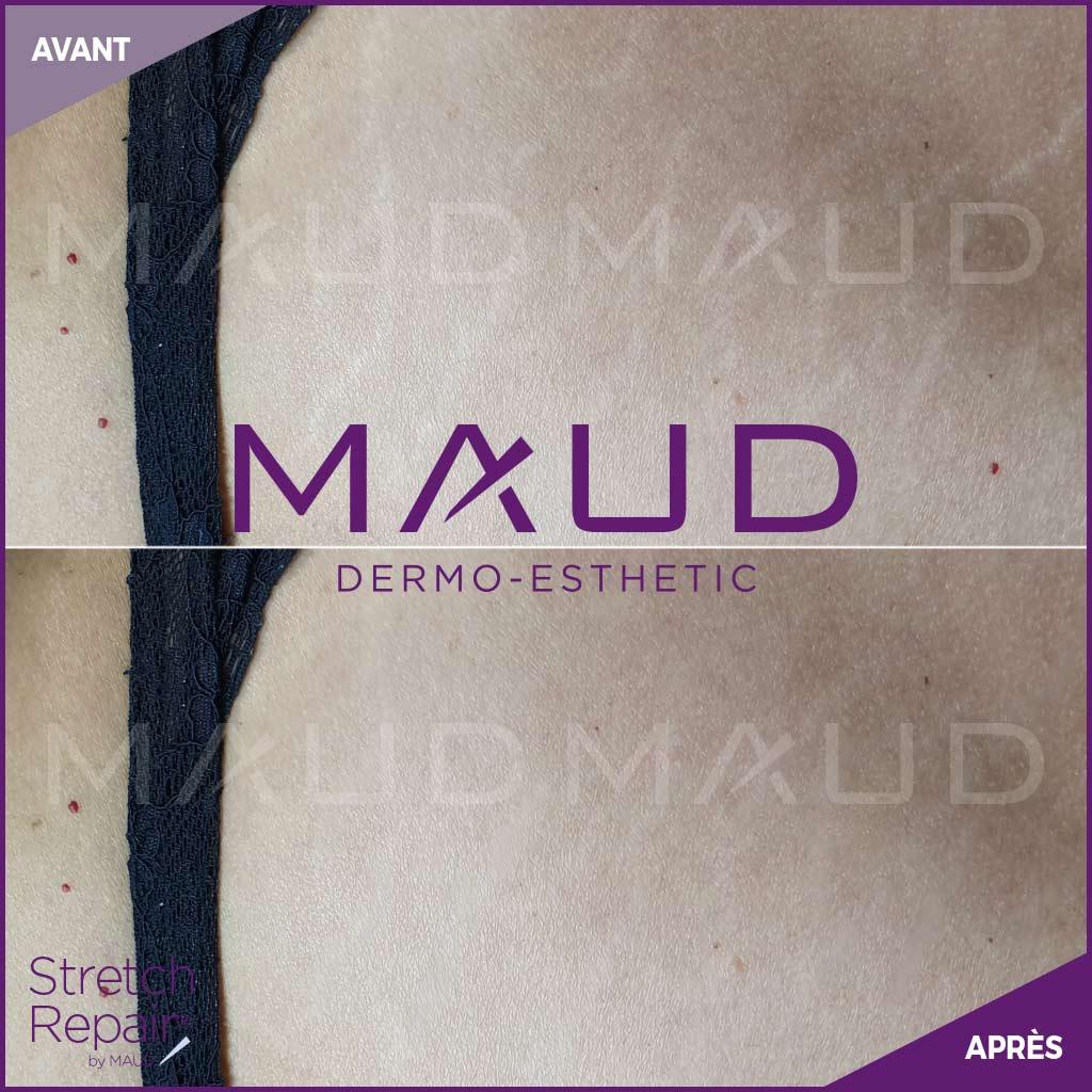 life-repair-vergeture-stretch-repair-maud-dermo-esthetic