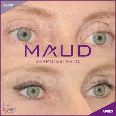 maquillage-permanent-cat-eyes-maud-dermo-esthetic.01
