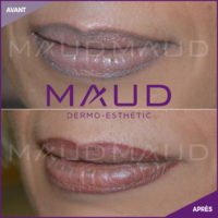 maquillage-permanent-corrections-maud-dermo-esthetic