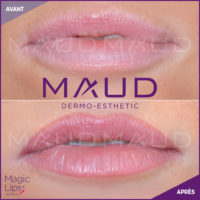 maquillage-permanent-levres-candylips-maud-dermo-esthetic-01