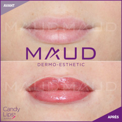 maquillage-permanent-levres-candylips-maud-dermo-esthetic-02