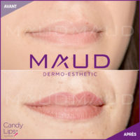 maquillage-permanent-levres-candylips-maud-dermo-esthetic-03