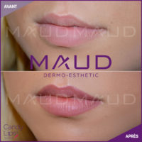 maquillage-permanent-levres-candylips-maud-dermo-esthetic-04