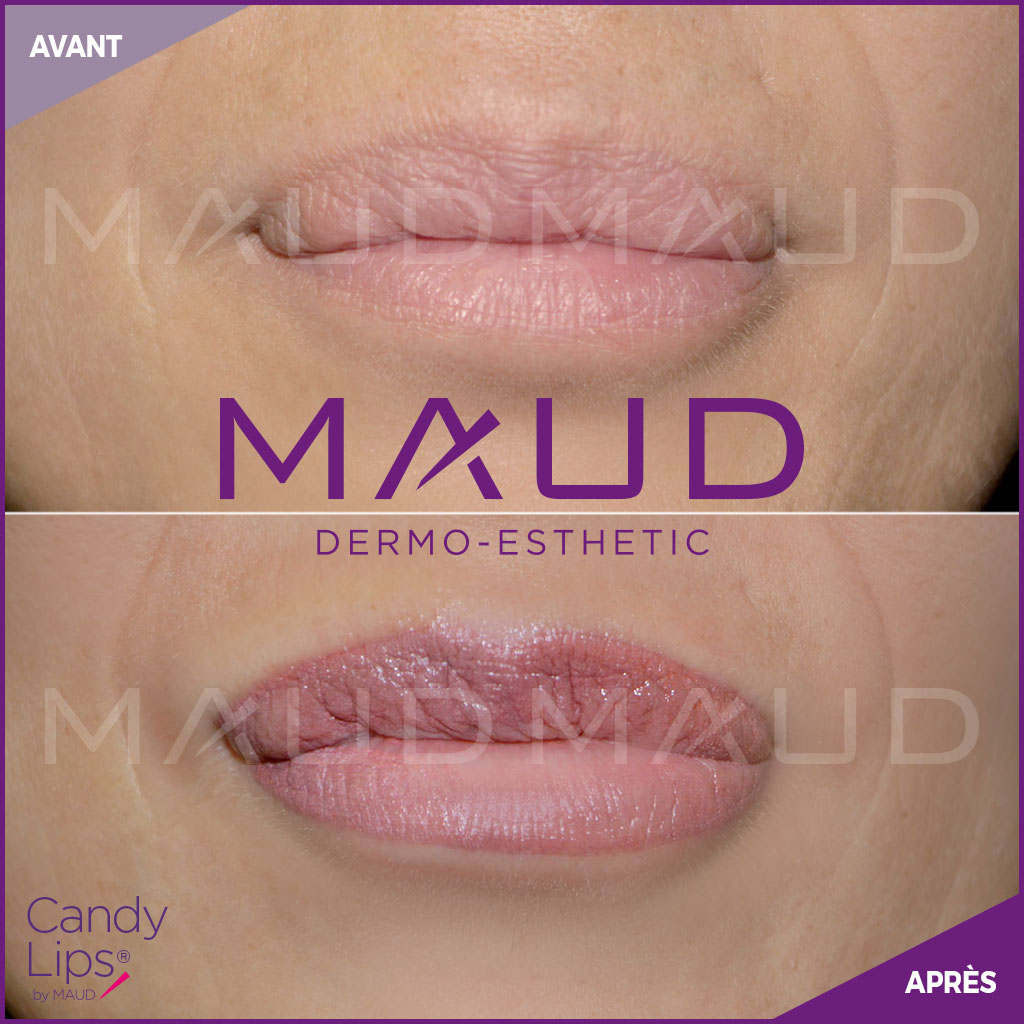 maquillage-permanent-levres-candylips-maud-dermo-esthetic-05