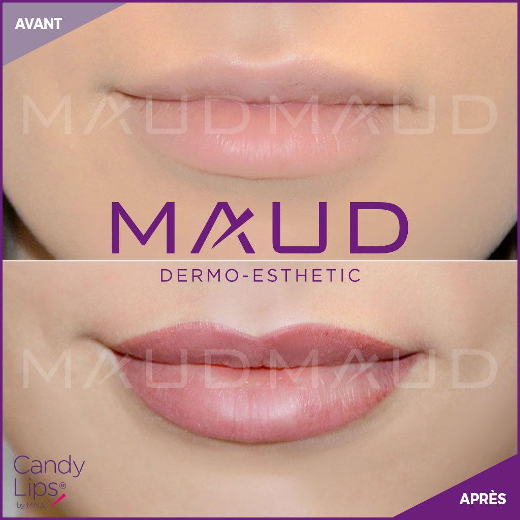 maquillage-permanent-levres-candylips-maud-dermo-esthetic-06