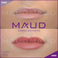 maquillage-permanent-levres-candylips-maud-dermo-esthetic-07