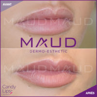 maquillage-permanent-levres-candylips-maud-dermo-esthetic-08