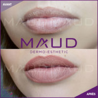 maquillage-permanent-levres-candylips-maud-dermo-esthetic-09