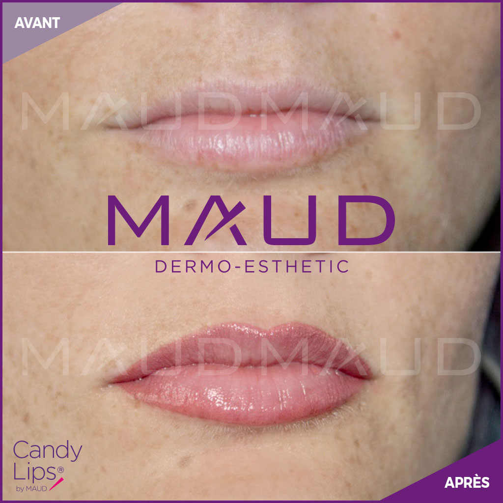 maquillage-permanent-levres-candylips-maud-dermo-esthetic-10