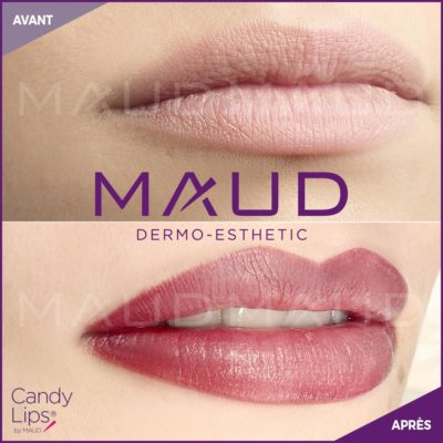 maquillage-permanent-levres-candylips-maud-dermo-esthetic-11 (1)
