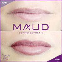 maquillage-permanent-levres-candylips-maud-dermo-esthetic-12