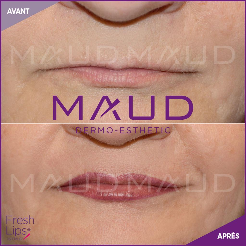 maquillage-permanent-levres-fresh-lips-maud-dermo-esthetic-01