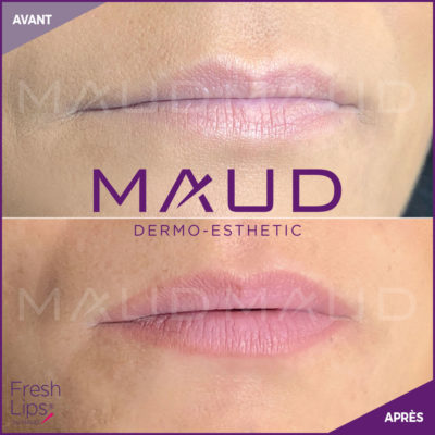 maquillage-permanent-levres-fresh-lips-maud-dermo-esthetic-04