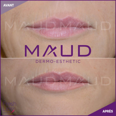 maquillage-permanent-levres-fresh-lips-maud-dermo-esthetic-05