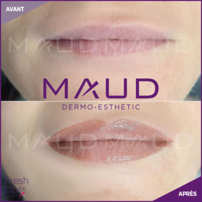 maquillage-permanent-levres-fresh-lips-maud-dermo-esthetic-06