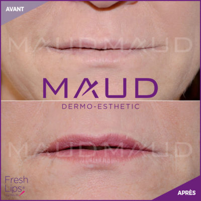 maquillage-permanent-levres-fresh-lips-maud-dermo-esthetic-2