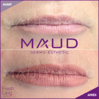 maquillage-permanent-levres-fresh-lips-maud-dermo-esthetic-3