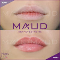 maquillage-permanent-levres-magiclips-maud-dermo-esthetic-02