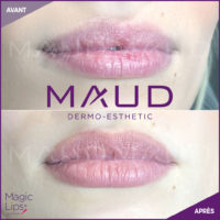 maquillage-permanent-levres-magiclips-maud-dermo-esthetic-03