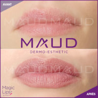 maquillage-permanent-levres-magiclips-maud-dermo-esthetic-04
