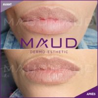 maquillage-permanent-levres-magiclips-maud-dermo-esthetic-05
