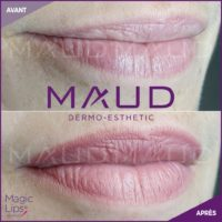 maquillage-permanent-levres-magiclips-maud-dermo-esthetic-06