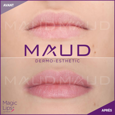 maquillage-permanent-levres-magiclips-maud-dermo-esthetic-08