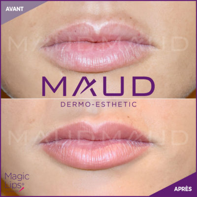 maquillage-permanent-levres-magiclips-maud-dermo-esthetic-09