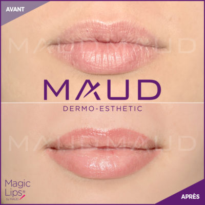maquillage-permanent-levres-magiclips-maud-dermo-esthetic-10 (1)
