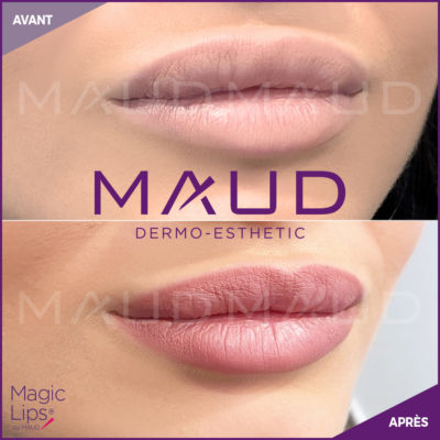 maquillage-permanent-levres-magiclips-maud-dermo-esthetic-11