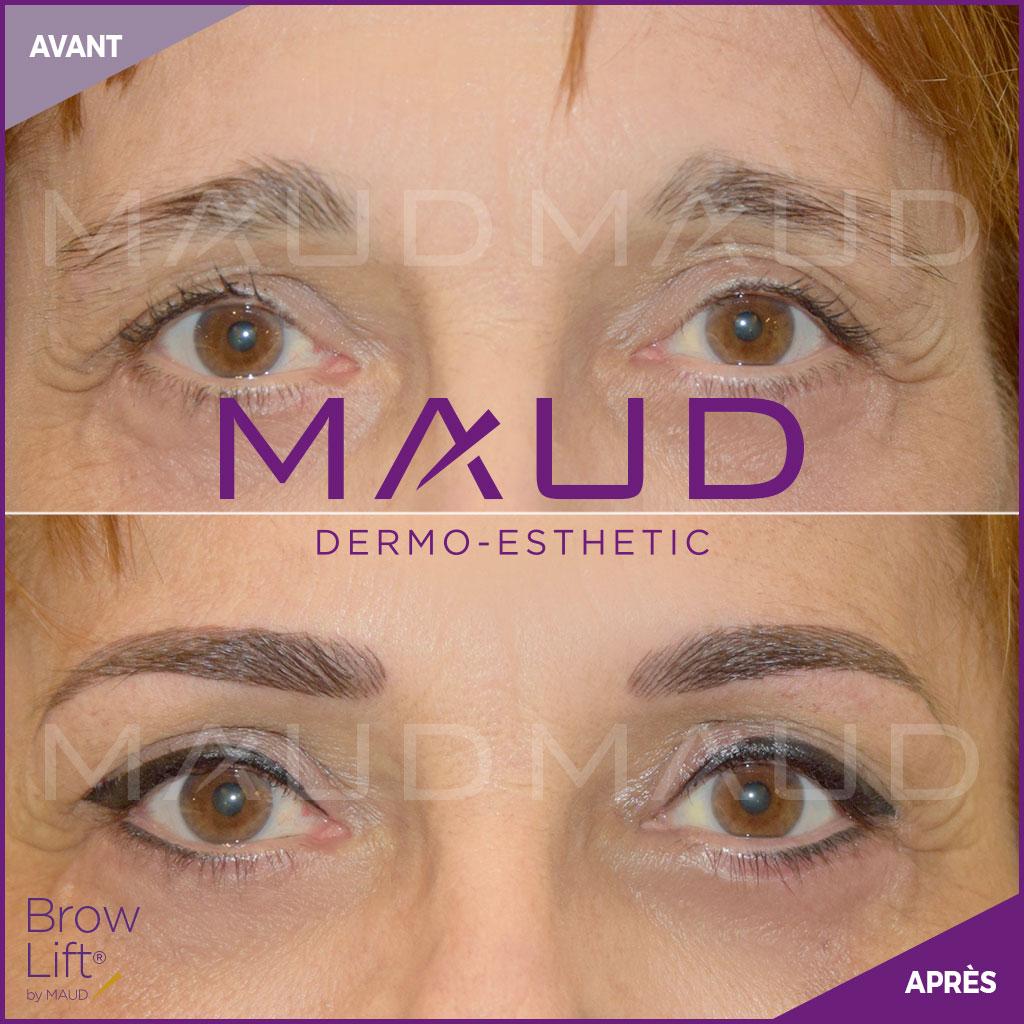 maquillage-permanent-sourcils-brow-lift-maud-dermo-esthetic-02 (1)
