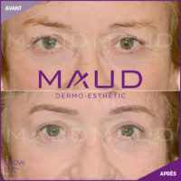 maquillage-permanent-sourcils-brow-lift-maud-dermo-esthetic-03 (1)