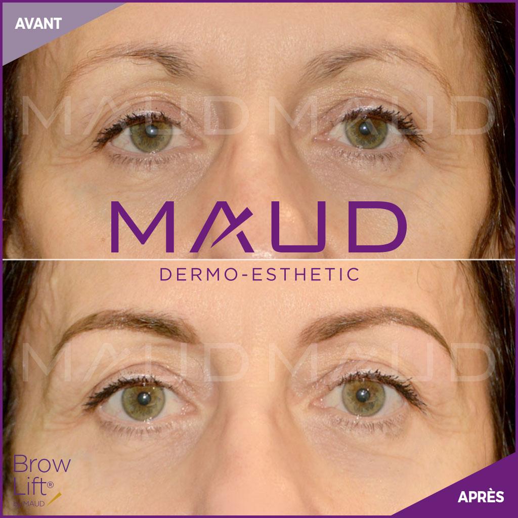 maquillage-permanent-sourcils-brow-lift-maud-dermo-esthetic.04