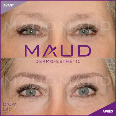 maquillage-permanent-sourcils-brow-lift-maud-dermo-esthetic.05