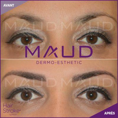 maquillage-permanent-sourcils-hairstroke-maud-dermo-esthetic-15