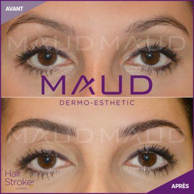 maquillage-permanent-sourcils-hairstroke-maud-dermo-esthetic-16