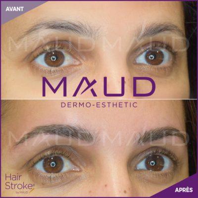 maquillage-permanent-sourcils-hairstroke-maud-dermo-esthetic-17