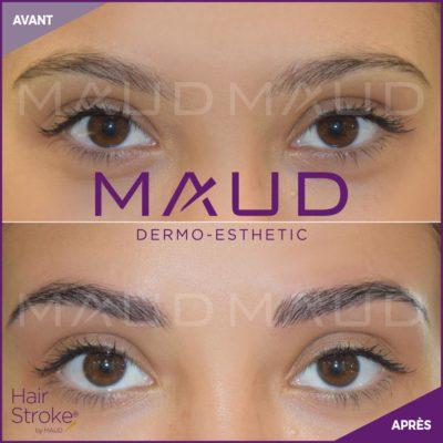 maquillage-permanent-sourcils-hairstroke-maud-dermo-esthetic-19