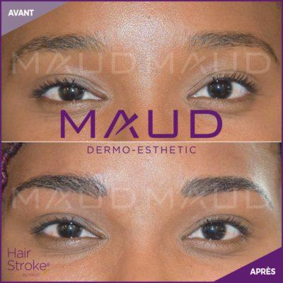 maquillage-permanent-sourcils-hairstroke-maud-dermo-esthetic-20