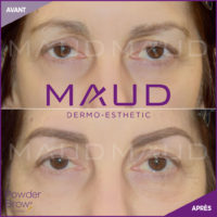 maquillage-permanent-sourcils-powder-brow-maud-dermo-esthetic-10
